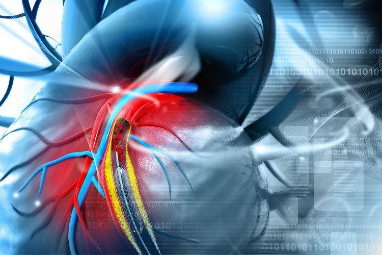 bệnh động mạch vành không đau ngực