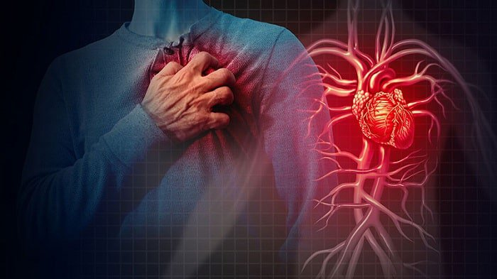 ngăn ngừa bệnh động mạch vành