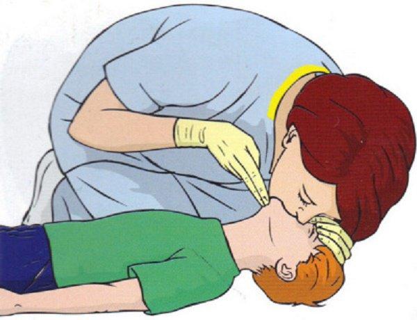 cấp cứu ngừng tuần hoàn ở trẻ em