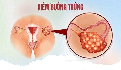 Viêm buồng trứng đã điều trị khỏi có ảnh hưởng đến thai nhi không?