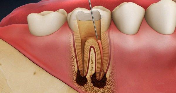 Viêm tủy răng nhẹ điều trị thế nào?
