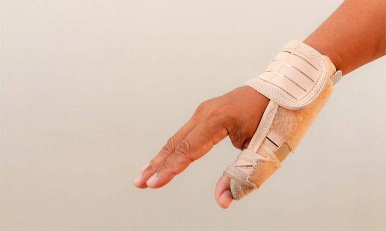 viêm gân vùng mỏm trâm quay cổ tay