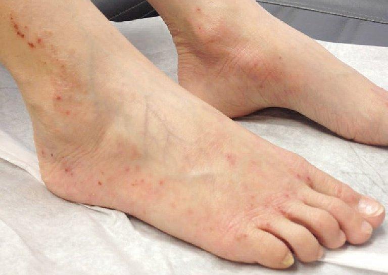 Nam giới nổi mụn đỏ, mụn nước trên mu bàn chân nguyên nhân là gì?