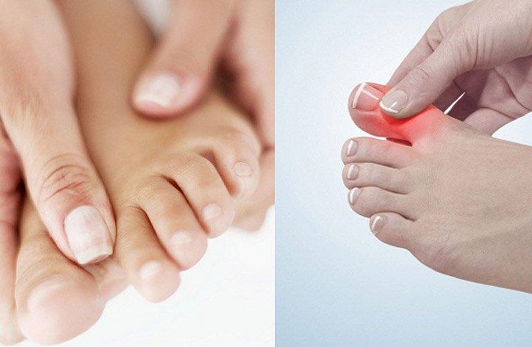 Nữ giới đau nhức, co thắt ngón chân điều trị như thế nào?