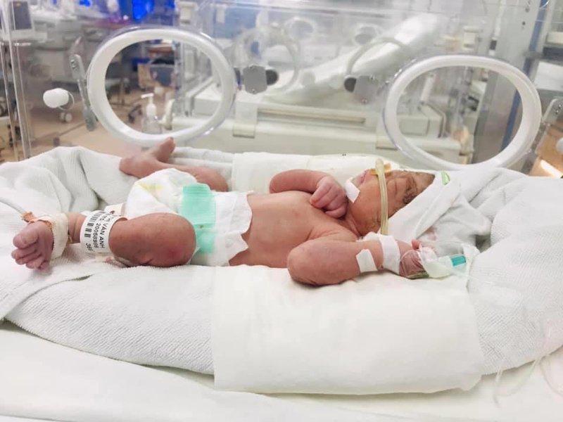Tăng áp động mạch phổi ở trẻ sinh cực non có nguy hiểm không?